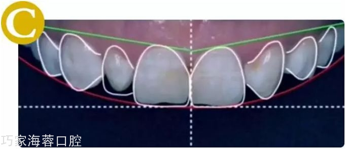 C.确定前牙牙龈缘高度、长宽比例、大小比例,绘制牙齿形态完成DSD设计.jpg