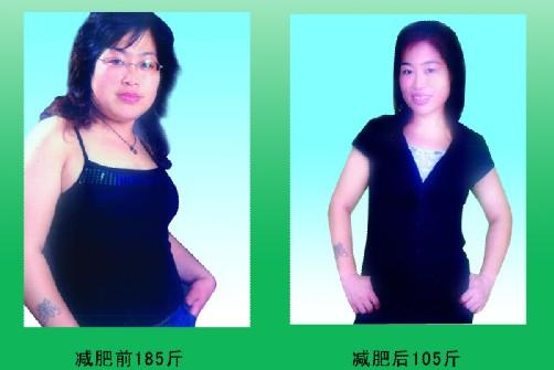 减肥案例五