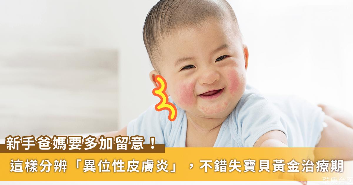 新手爸媽須知 | 別把「異位性皮膚炎」當成「脂漏性皮膚炎」,錯失寶貝黃金治療期